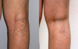 Before and after use Varicobooster 1